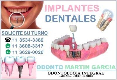 Implantes Dentales Titanio Optima Oseointegración / Consulta