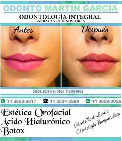 Botox - Acido Hialurónico - Estética Orofacial / Consulta: