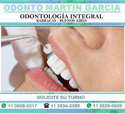 Carillas Dentales / Consulta y presupuesto: