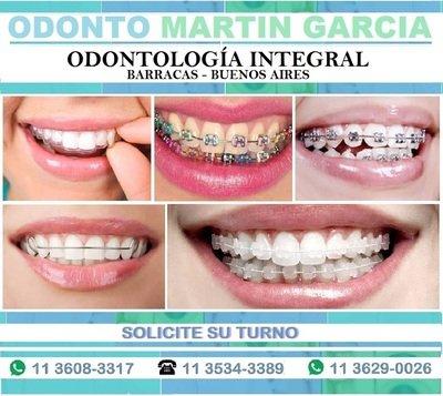 Ortodoncia Brackets Invisalign Cerámicos Zafiro / Consulta: